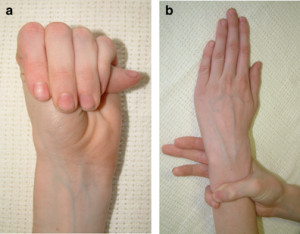 Marfan-syndrome